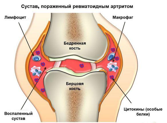 gelide artroosi ravi geeli ja tablette liigeste valust