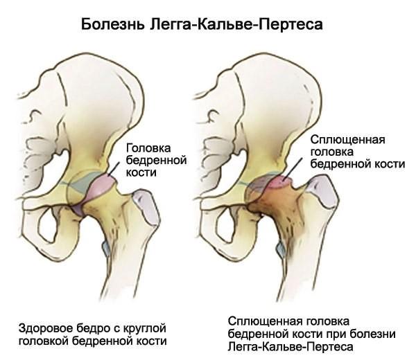 valu jalgade pohjuste ja ravi liigeste valu