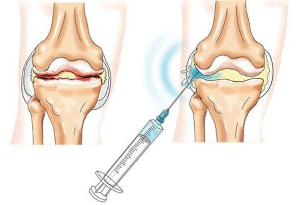parema kuunarnuki liigese 2 kraadi artroos mida teha et liigesed ei tee haiget