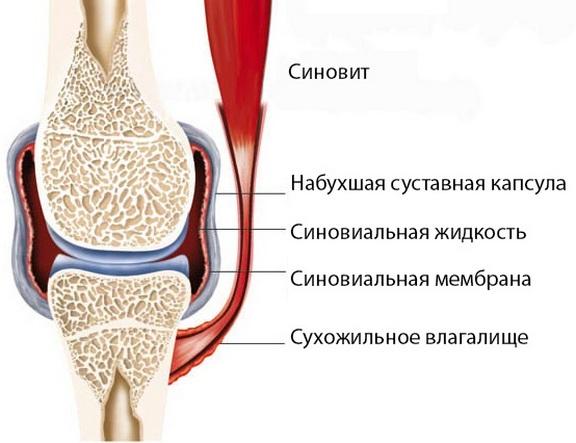 valutu turse liigesed koik liigeste ja nende ravi kohta