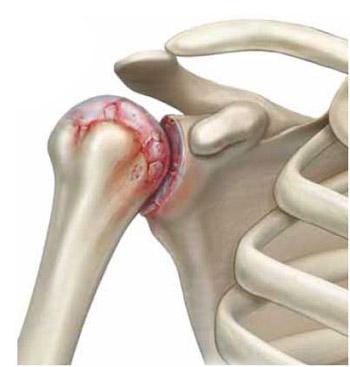 kuidas hoiatada artriidi kaed