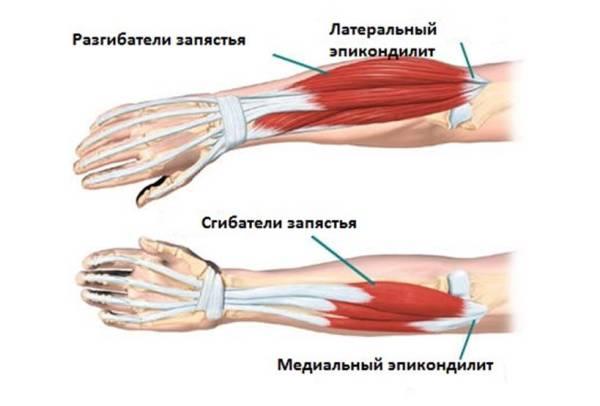 inimeste meetodid liigeste harjade raviks valu vasaku kae olaosas soites