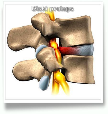 seljavalu ja liigeste valjumine pusiv valu painutuse ajal