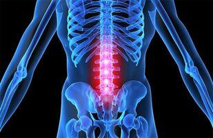sundroomi haiguse soviefs eutirox ja liigesevalu