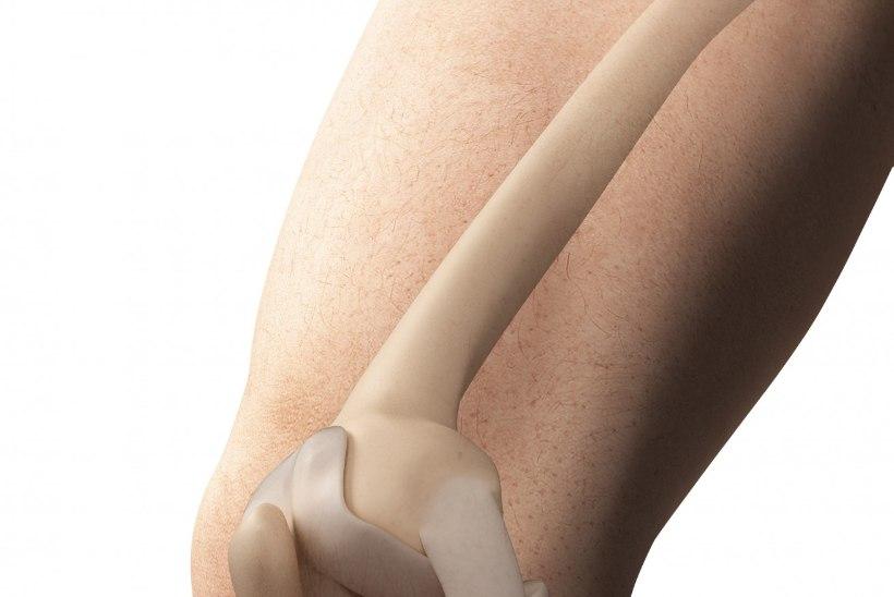 artriidi sormede marke ja ravi