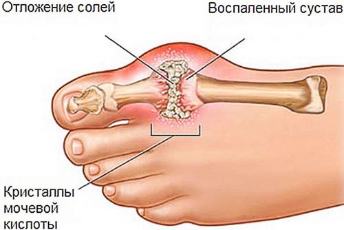 salv jala liigesed valu kuunarnukis kaes laienduses