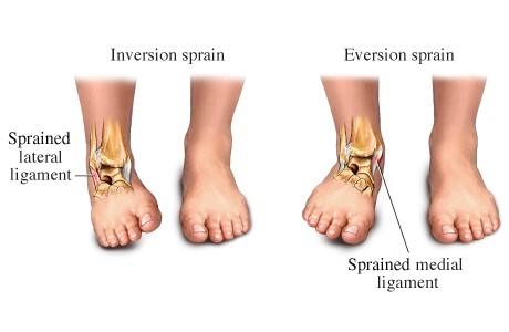 olaliigese parast vigastust ravi d artroza
