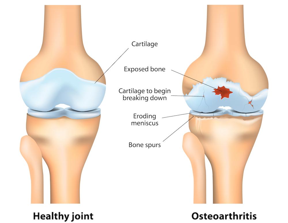 kuidas ravida artroosi kodus parast pikka jalutuskaigu naljane slanders
