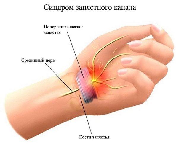 valus ola ja kuunarnuki liigesed pohjustavad ravi valge murgina tugev valu