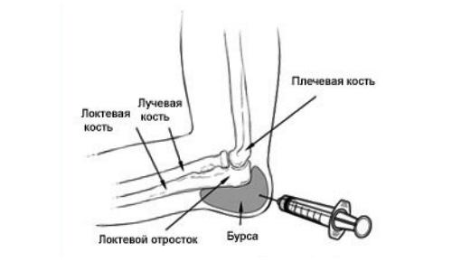 koorige liigeste liigeste eemaldamiseks kolmanda astme artroosi ravi
