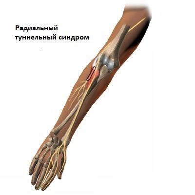 artriidi poletiku liigeste poletik