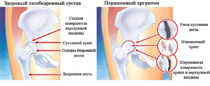 liigese vahetamine artroosi ja artriidi vahetamine uleujutatud polve tarud