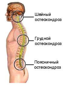 osteokondroosi valus liigesed