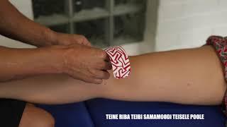 artroosi ravi maripolis magus jala jalgsi