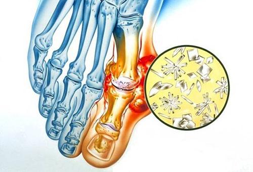 varikoosi ja liigeste veepoletik lihased haiged kuunarliigese