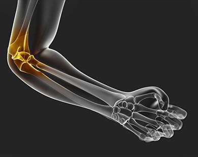 arthroosi ravi mbst ulevaateid animal flex glukosamiin ja kondroitiin