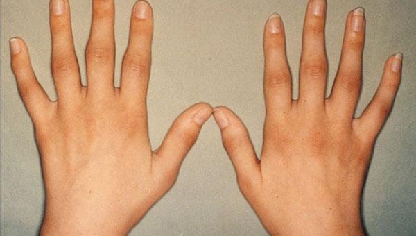 ageda artriit kuunarnuki liigese valu puusaliigese ajal kondimisravi ajal