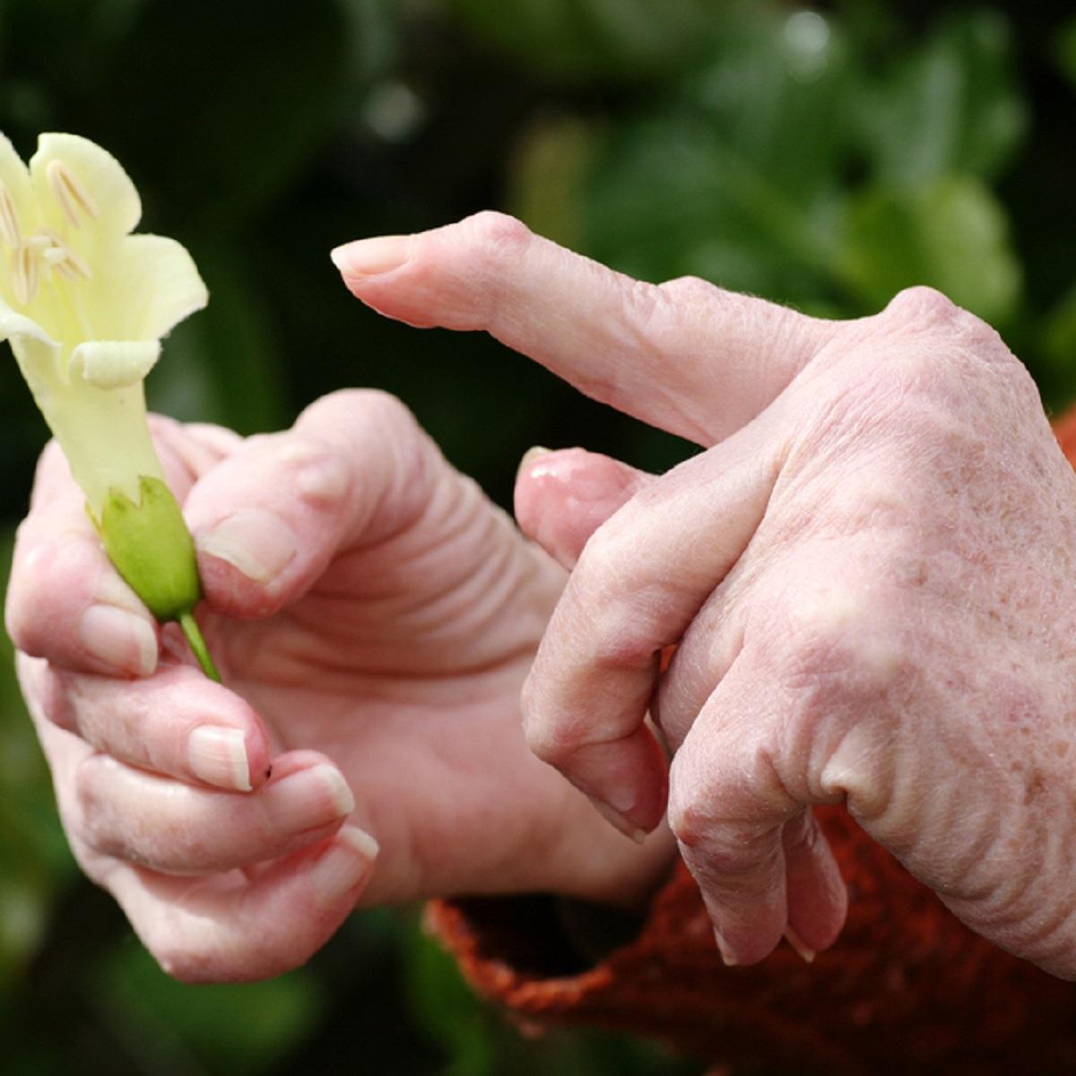 aneemia liigeste haiguste haiguste jaoks liigeste rosina ravi
