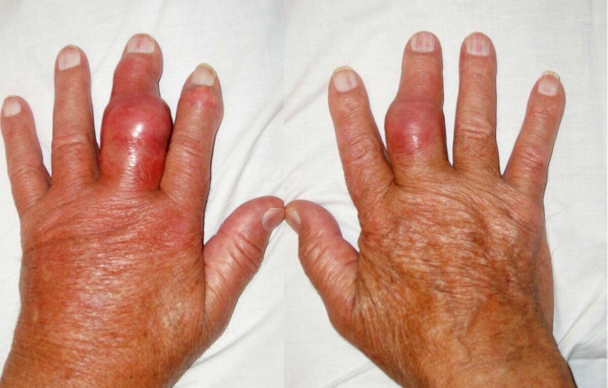 valu kate sormede liigestes pohjuse paindumisel