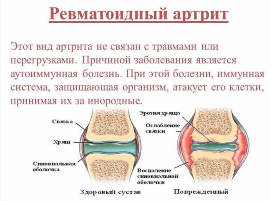 poletik poidla liigese jala lomit toetab ravi pohjustab ravi