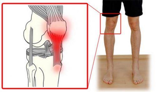 mandibulari liigeste artroos
