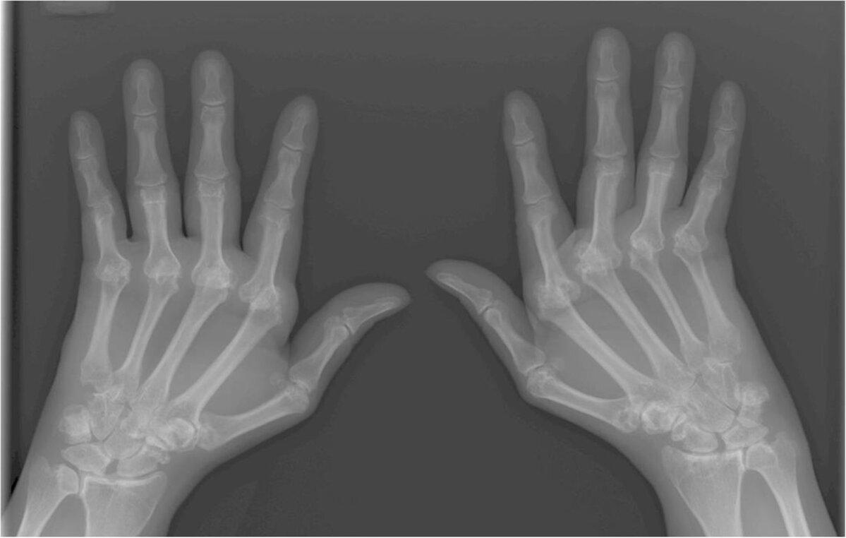 hurt ja paisuvad sormede liigesed randmeliigese valus