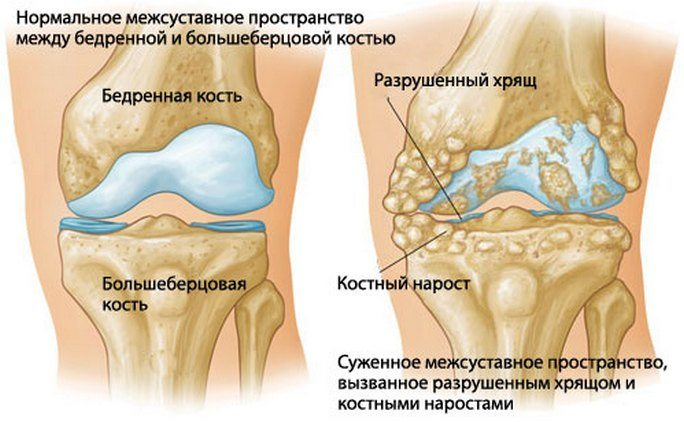 sustava artroos parast horisontaalset ola liigeste haiget