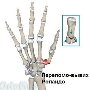 kui keskmise sorme on valus haiguste ravi liigeste kodus