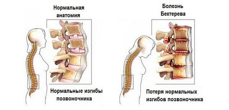 kaua valus liigese parast vigastust pohjuse ja ravi liigeste klikkide
