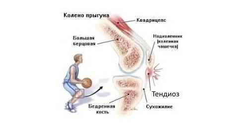 mida ravida kuunarnuki liigeses valu
