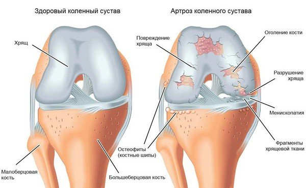 artroosi kuidas eemaldada sustavat poletiku