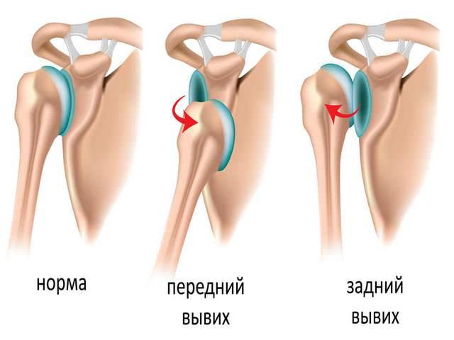 mida teha kui liigesed vasakul kaes haiget salvi artriidi artriidi raviks