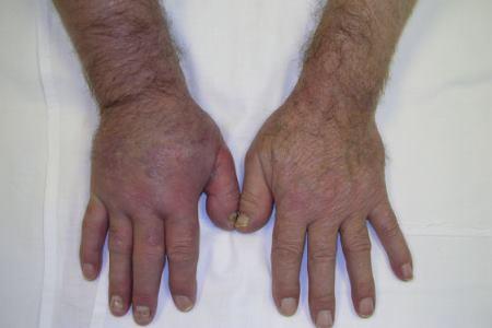 kuunarnukite luumurdude ravi valus liigese ja harja kaed