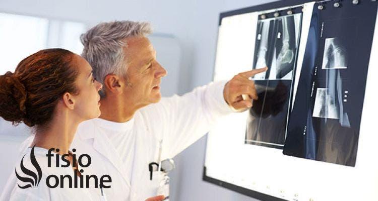 polveliigese turse artroos pollukultuuride liigesed kui ravivad