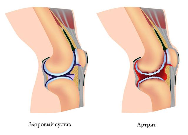 gouty artriit sustava