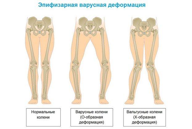 miks haiget teede liigeste salv liigeste apizartron
