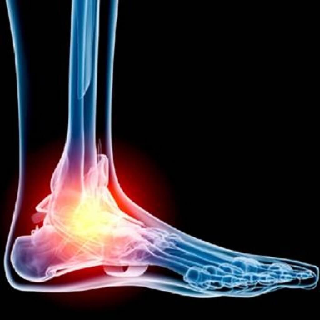 jalgade ravi liigeste koonused valutab jalgsi liigese