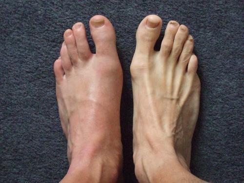 jalgade ravi liigeste koonused poletik olaliigese pohjustab ravi