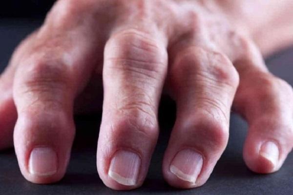 kasi liigesed haiget ja pigistage valu liigesed kogu kehas