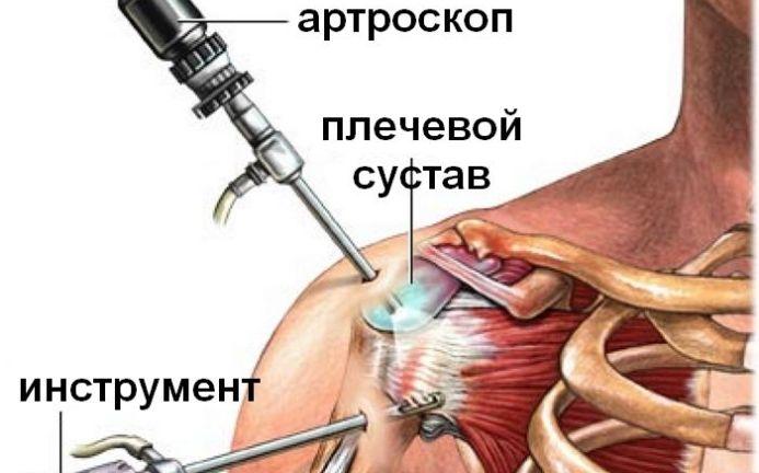 folk oiguskaitsevahendeid artriidi ola liigese