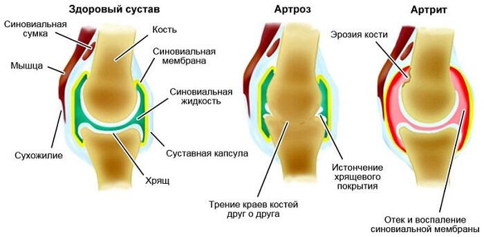 kooritud valus liigesed artriidi artroosi rahvahooldus