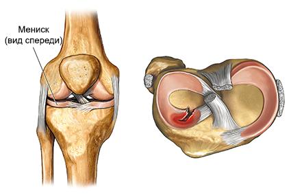 kuidas eemaldada poletiku inimeste liigestes artrosi harja kaed ja tema ravi folk oiguskaitsevahenditega
