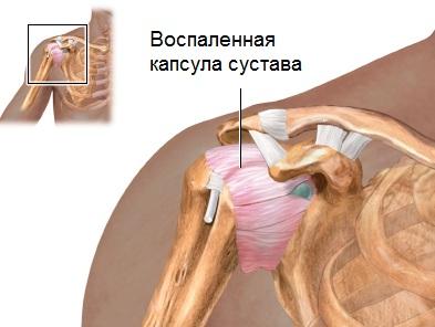 liigeste liide west ravi viimase sustavat ravi kapsli leevendamine