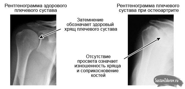 kuidas maarata valu pohjus ola liigese