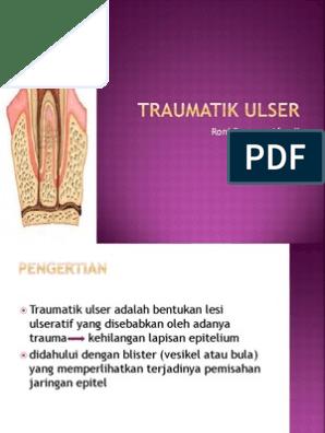 laserteraapia kuunarli liigese artroosis