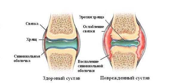 kui ola liigese artroosi toodeldakse valu harjade ja jala liigeste liigestes