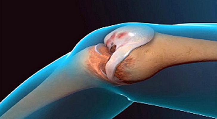 liigeste retseptide ravi valu liigestes kogu keha pohjustab