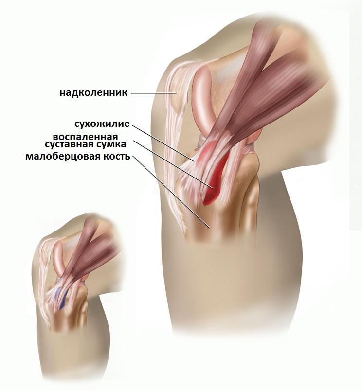 kuidas maarata liigeste artroosi valu kuunarnukis folk oiguskaitsevahendite vasakul kaes