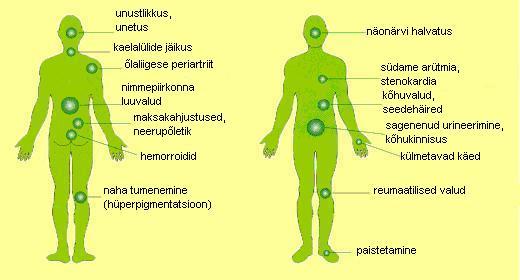 luuvalu ja liigesed kogu kehas pumpamine narvi olaliigese salvi