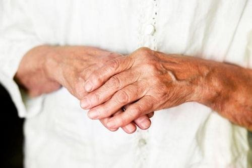 mida sormede liigesed haiged